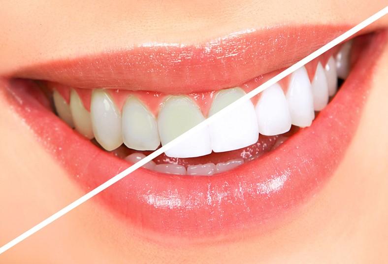 kosmetyczne wybielanie zębów